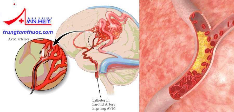 mạch máu nhỏ gây tai biến mạch máu não