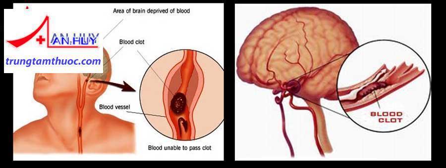 Xơ vữa động mạch gây tai biến mạch máu não